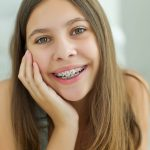 Do I Need Braces Quiz | The Quiz Tribe | 15 Questions